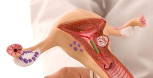 Методы предохранения от нежелательной беременности