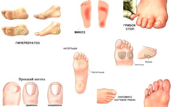 Лекарство от грибка на пальцах