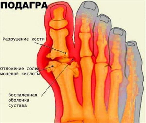 Подагра - причины, симптомы, диагностика, лечение