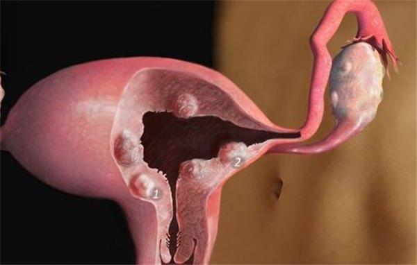 Рецепты миомы матки: лечение народными средствами