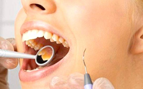 Способы отбеливания зубов у стоматолога